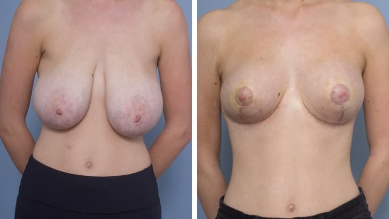 Breast Reduction with Autoaugmentation to Upper Pole